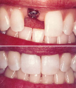 Permanent Teeth Implants